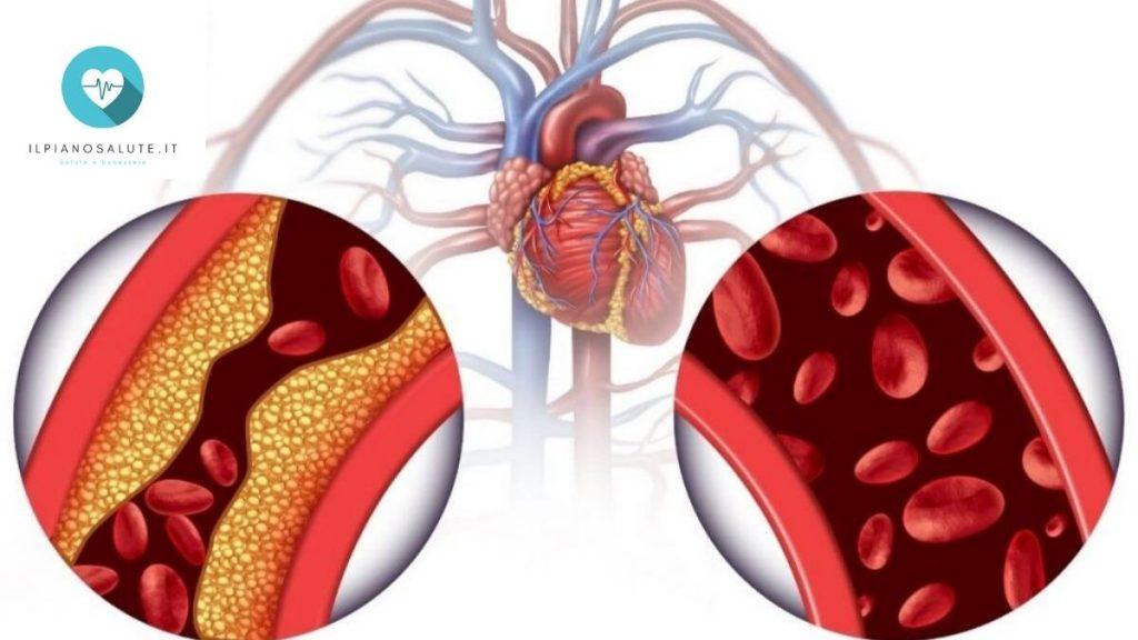 i migliori integratori alimentari per colesterolo